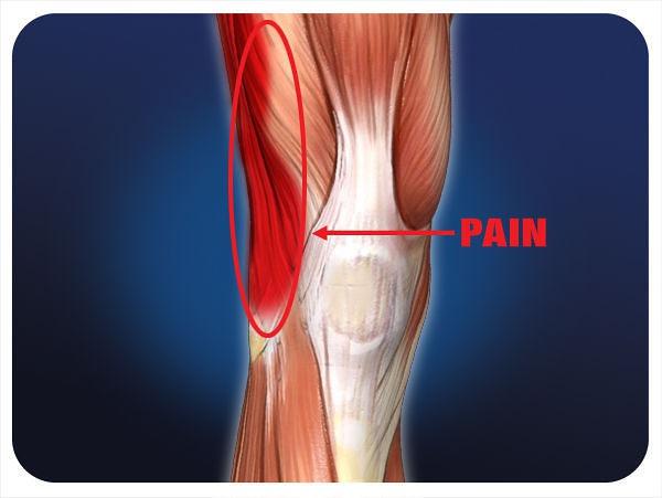 it-knee